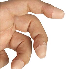 写真:指をまもるストリングガード